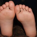 足の指が突然痛くて腫れてしまった!痛風の症状と予防法